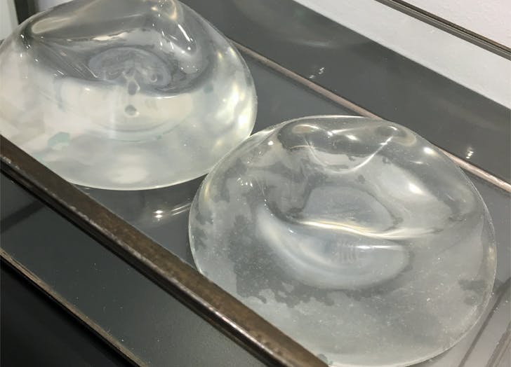 Implants 728x524