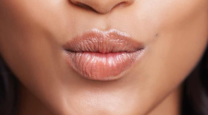 A Simple (but Slightly Strange) Trick for Treating Chapped Lips