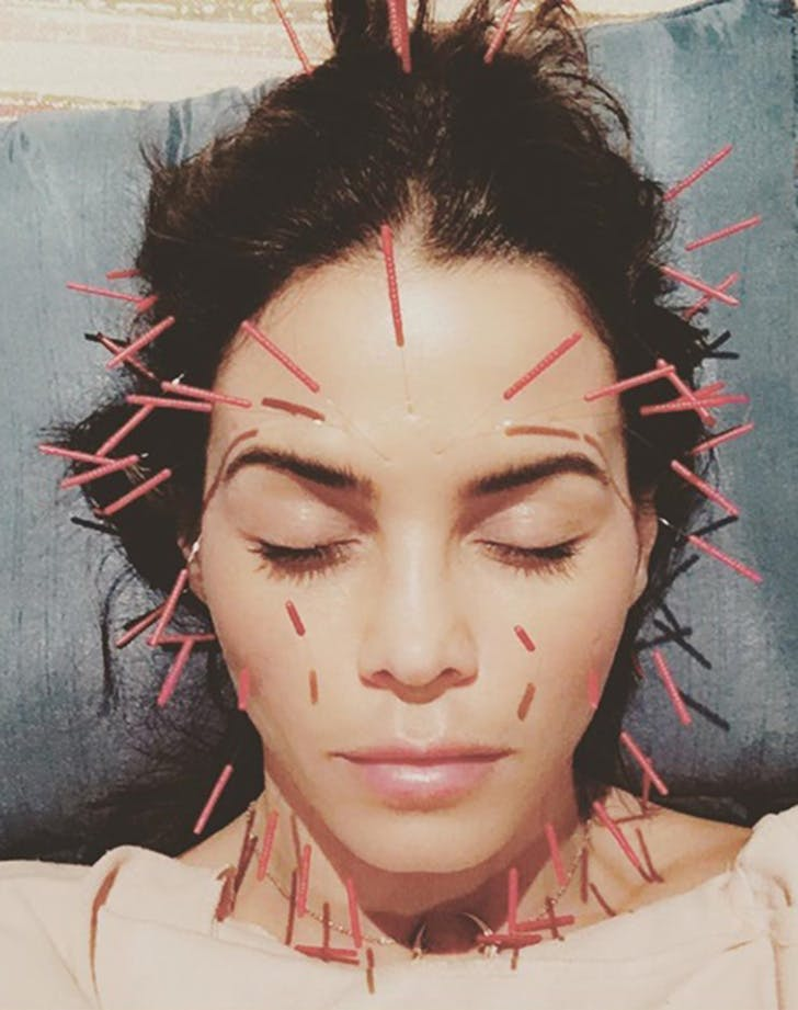 Jenna Dewan Tatum Acupuncture