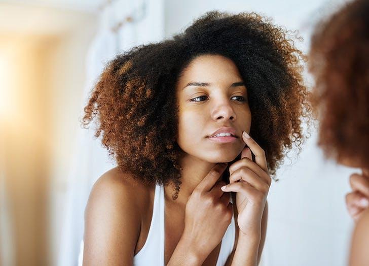 beauty uses for castor oil acne