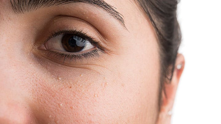 What's the Deal with Those Small White Bumps on Your Face?