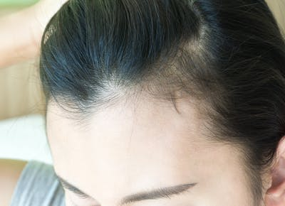 woman serious hair loss problem for health care shampoo and beauty product concept t20 8lyGzj