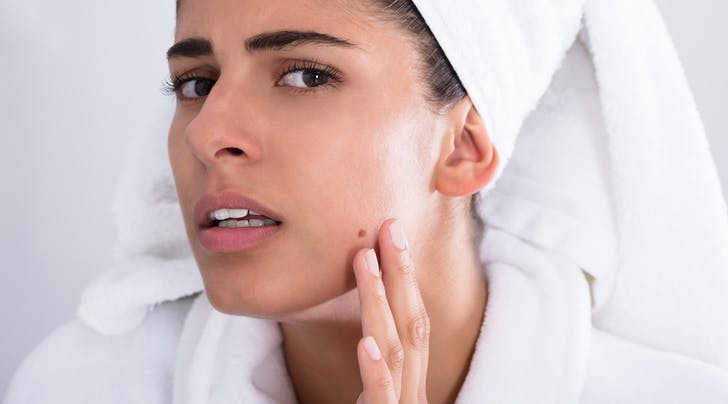 Do You Have Fungal Acne, or the Regular Kind? - PureWow
