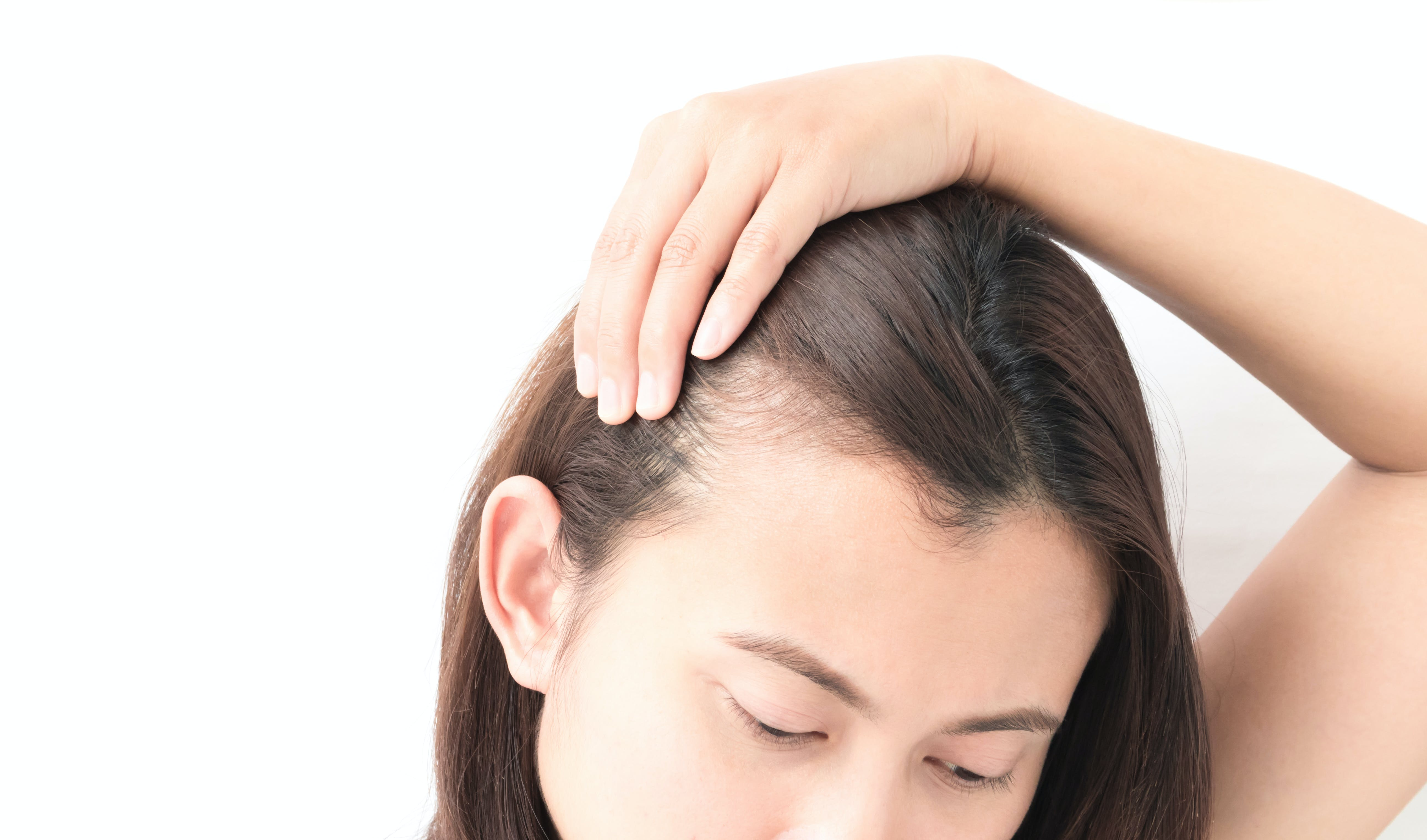 What Causes Traction Alopecia? And How Do You Treat It?