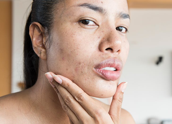 The One Mistake You Might Be Making with Your Acne Treatment