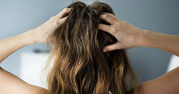 Looking for a Dry Scalp Treatment? Here are 18 Soothing Options